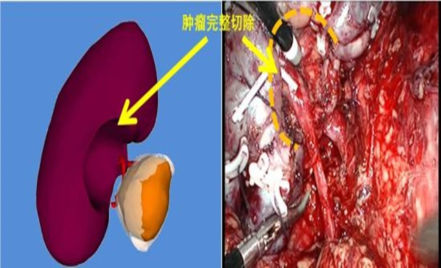 woman-tumor-cured-by-3d-painting