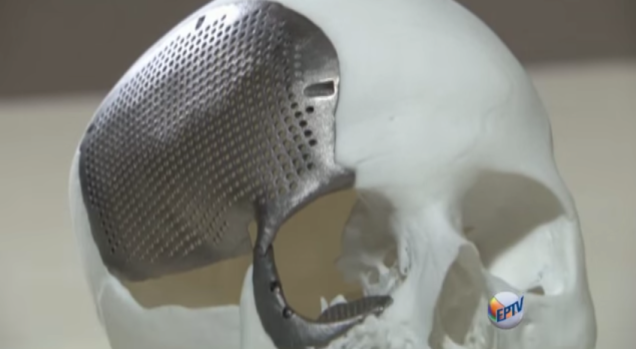 1st-ever-3d-printed-titanium-skull-implant-4