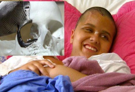 Injured Girl Gets 1st-ever 3D Printed Titanium Skull Implant