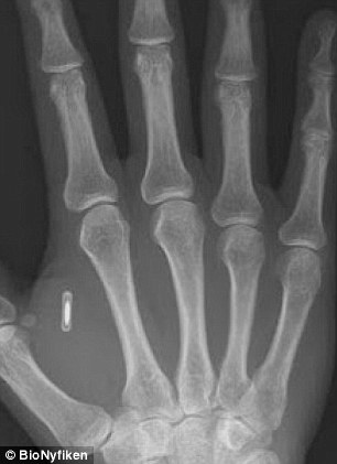 rising-security-and-privacy-concerns-over-early-rfid-biochip-adoption
