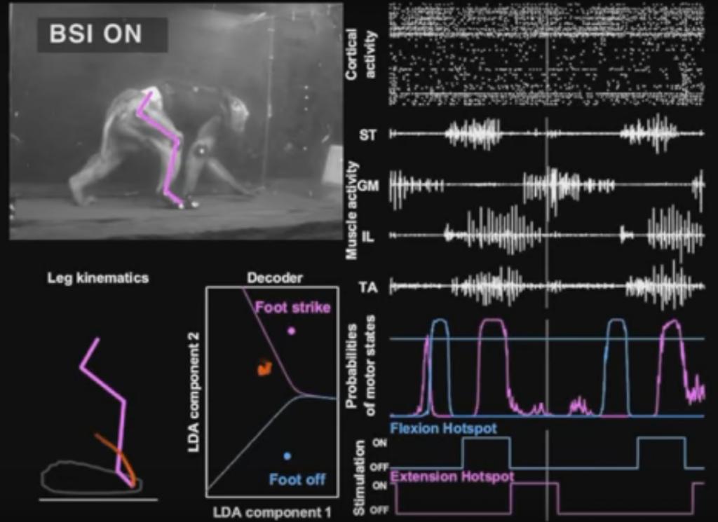 wireless-brain-interface-can-make-paralyzed-walk-2