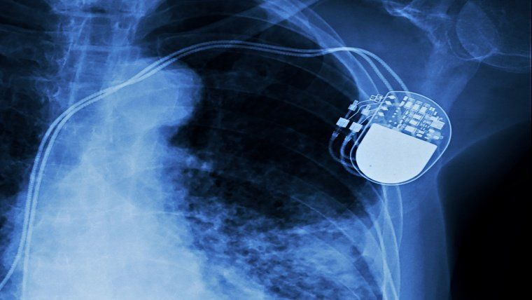 Thousands of Critical Security Flaws Leave Pacemaker Vulnerable to Hackers