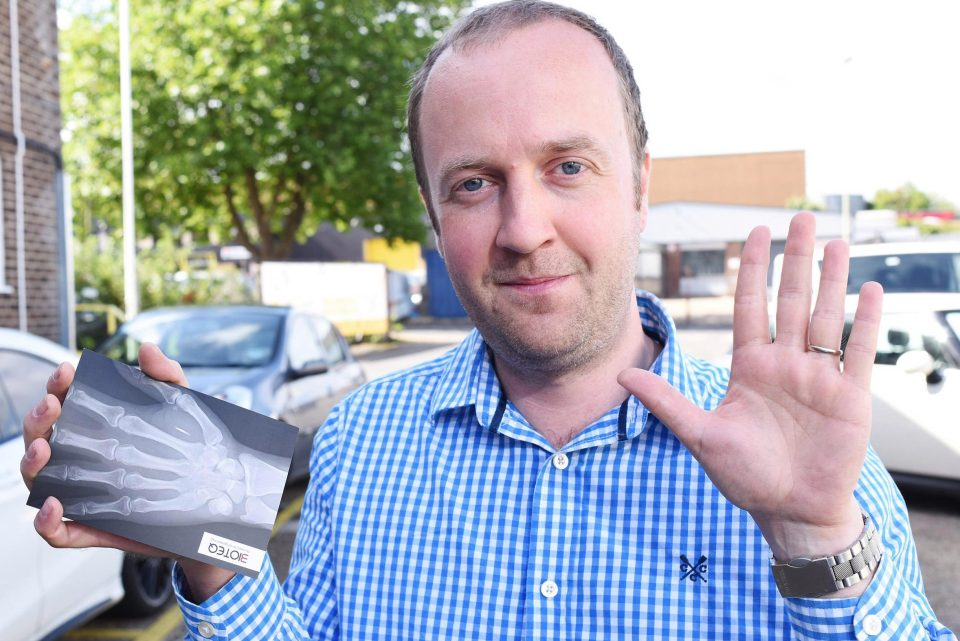 Man implants microchip in his hands to open doors & unlock car with ease