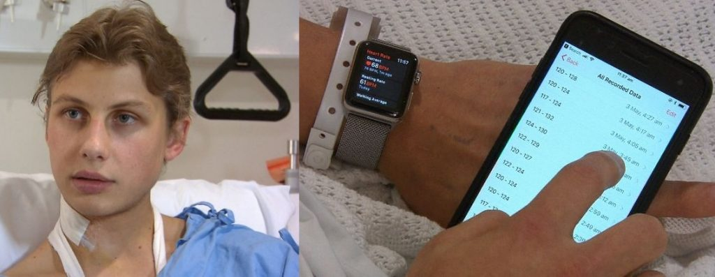 Apple Watch saves one more life notifying user about his unusual heart rate
