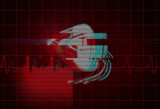 Medtronic defibrillators vulnerable to life threatening cyber attacks