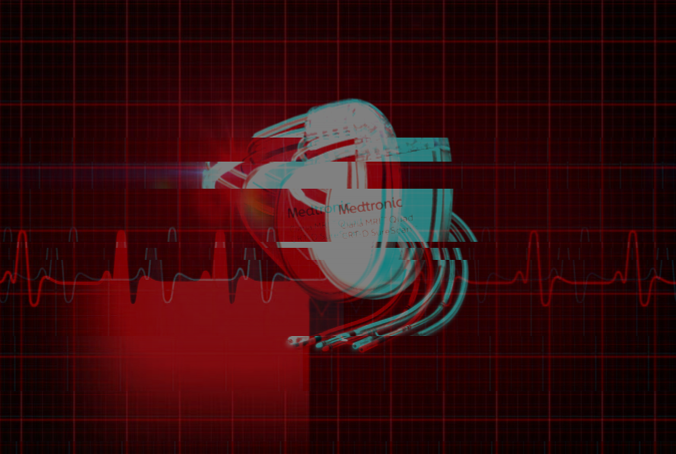 Medtronic-defibrillators-vulnerable-to-life-threatening-cyber-attacks